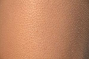 skóra osób starszych