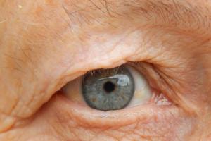 choroby oczu u seniorów