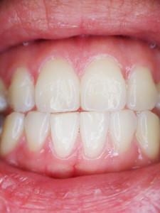 utrata zębów bezzębie